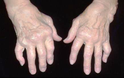 какие симптомы бывают при артрите