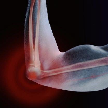Как долго может болеть спина после пункции