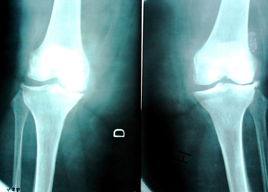 Артроз коленного сустава и грязелечение физиолечение магнитом коленного сустава