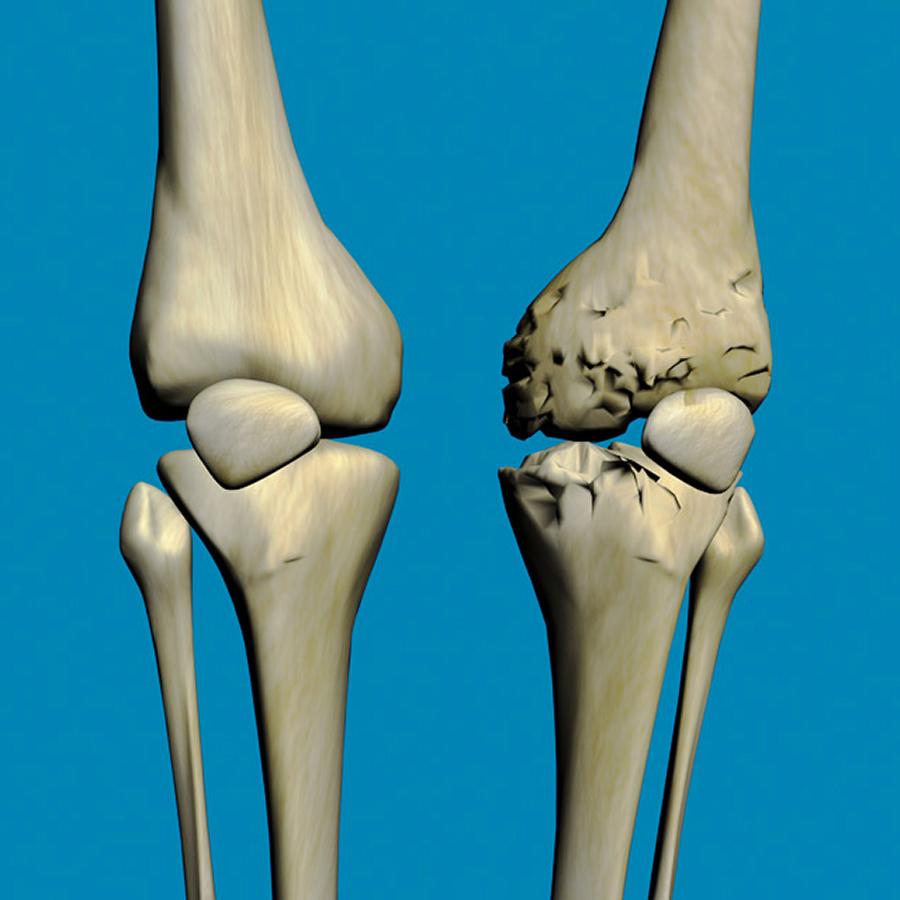 Грязелечение при артрозе коленного сустава